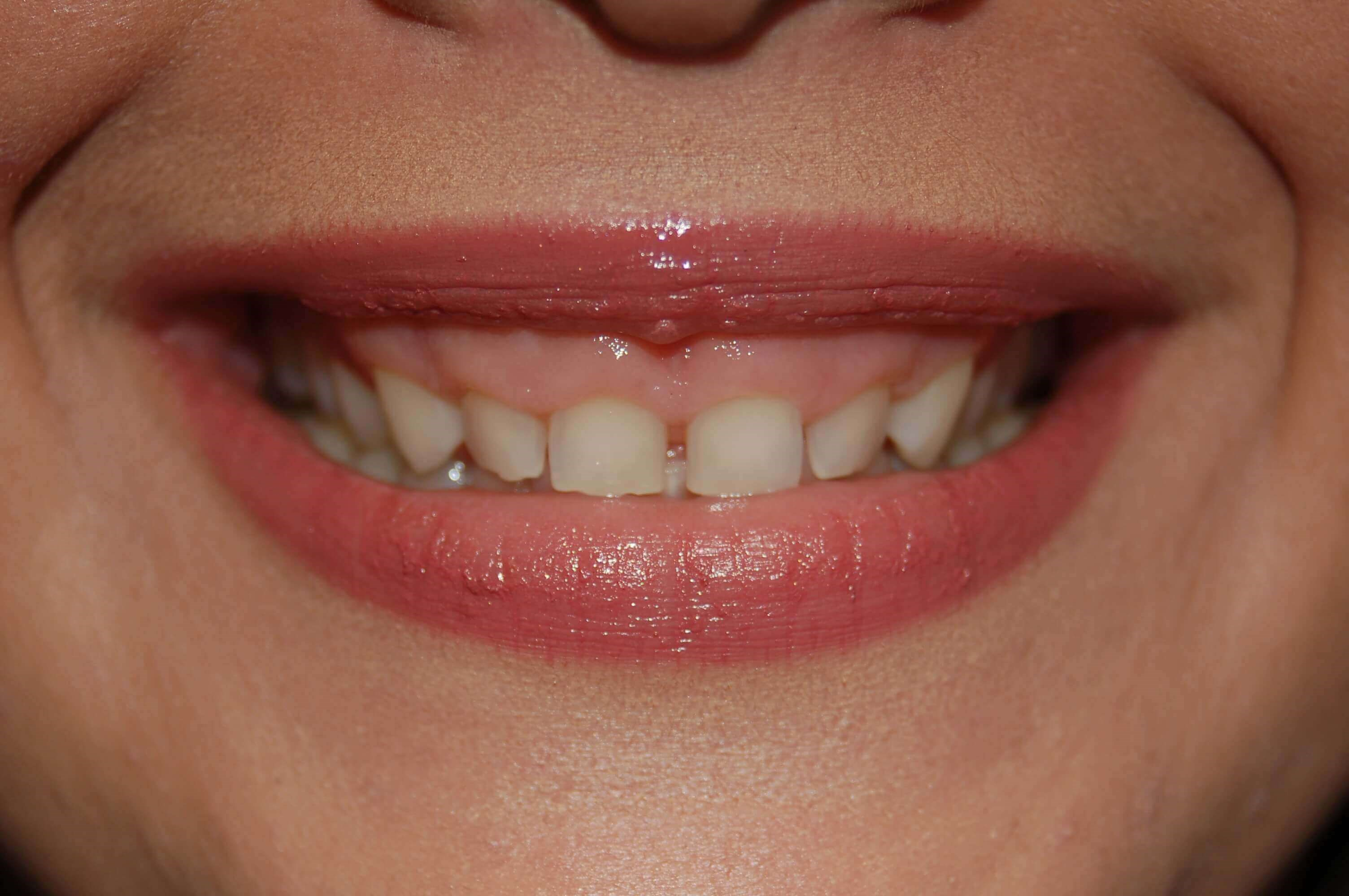 Porcelain Veneers Richland Wa Before