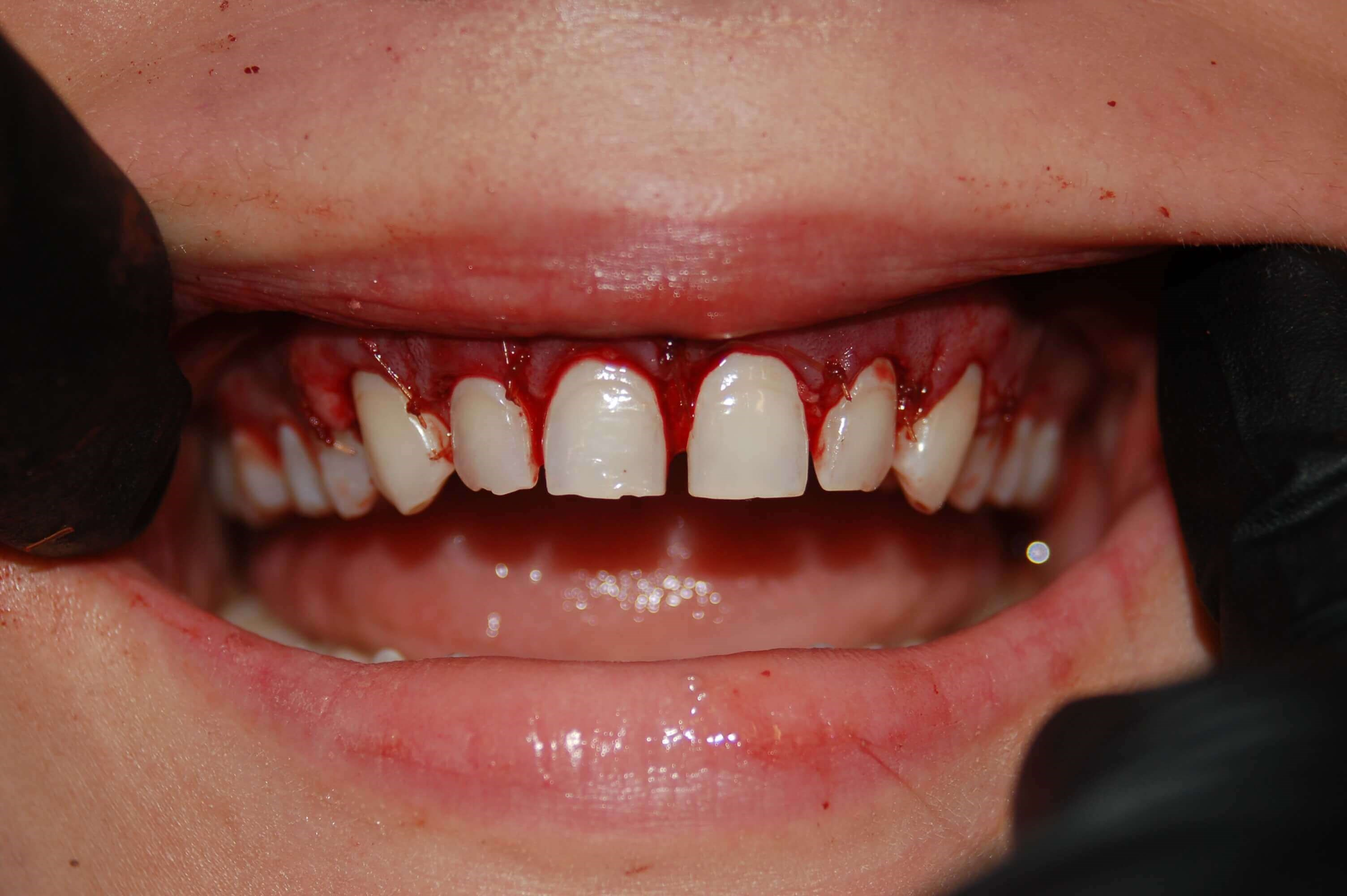 Esthetic Crown lengthening after