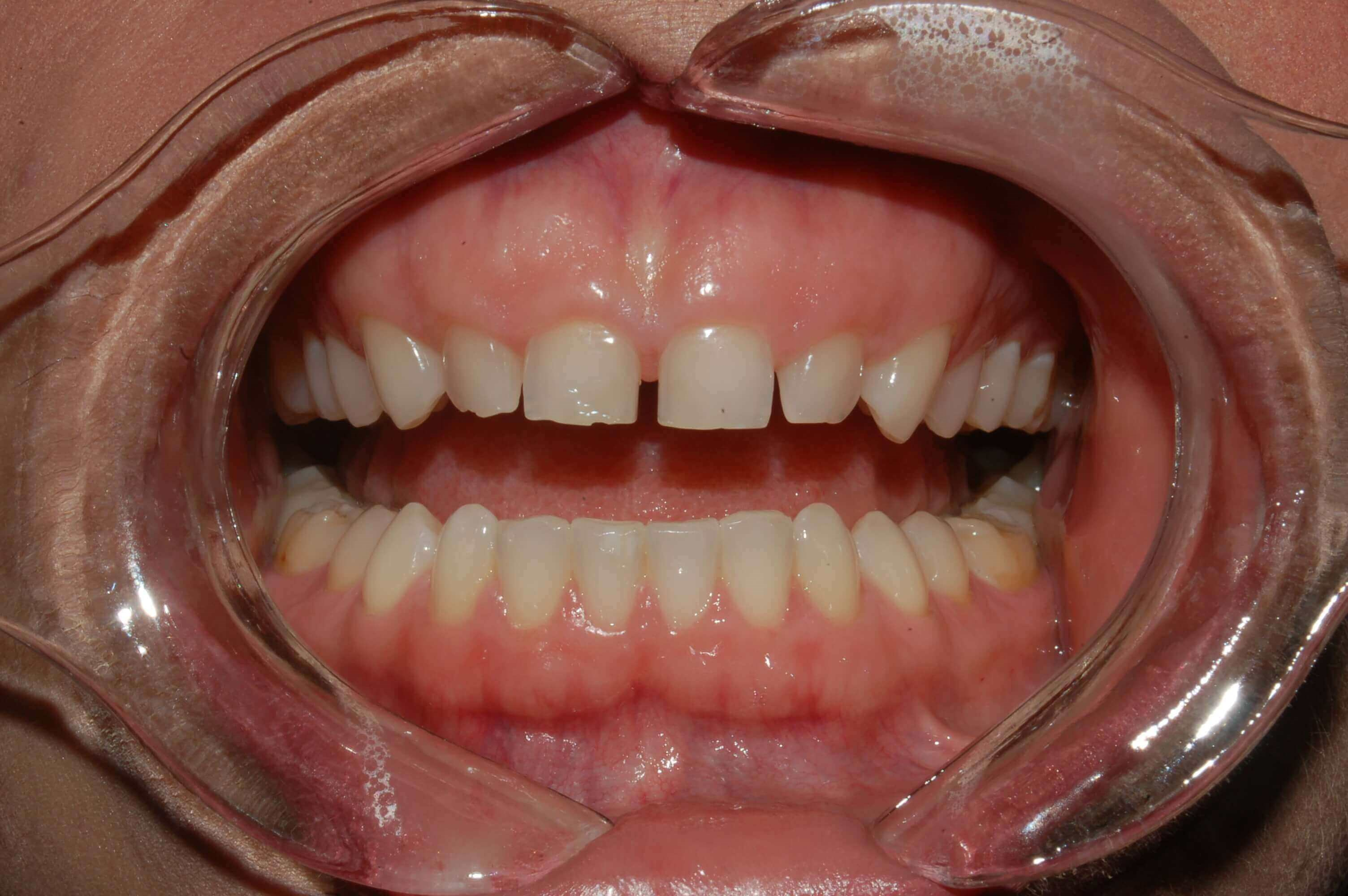 Esthetic Crown lengthening before
