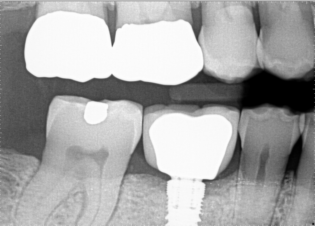 Dental Implant Crown Richland After Dental Implant Crown