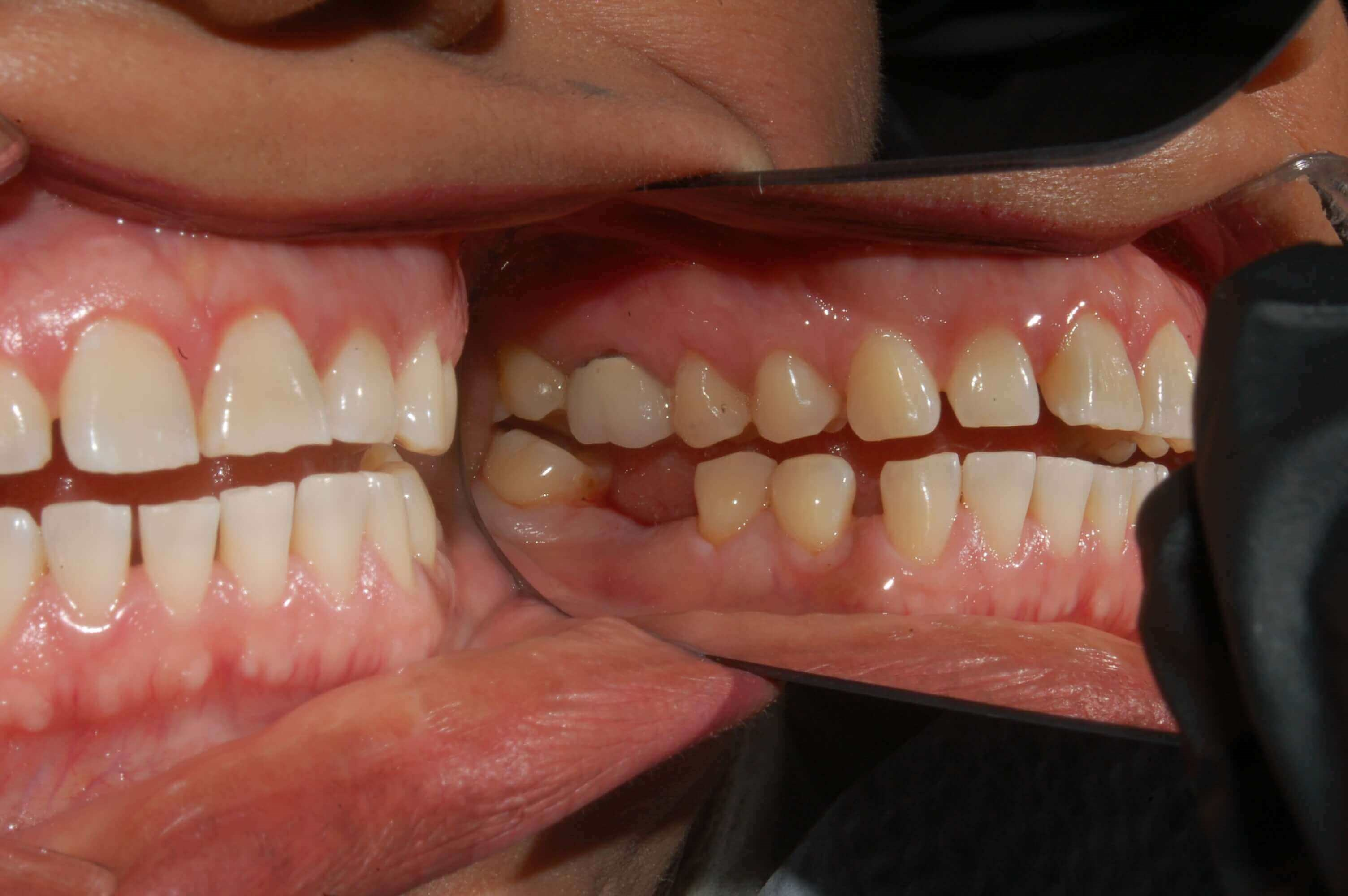 Dental Implant replaces tooth. Before