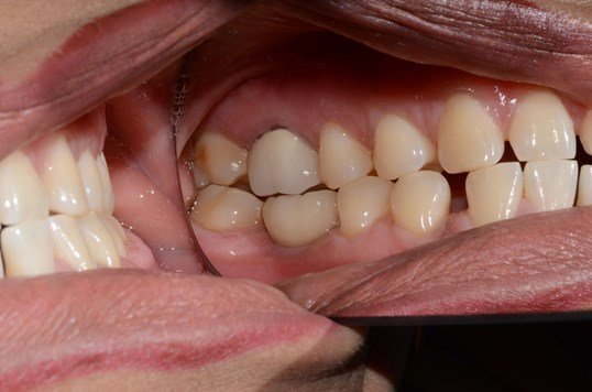 Dental Implant replaces tooth. After