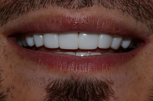 Composite Veneers Tricities Wa After