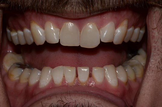 Composite Veneers Tricities Wa Before