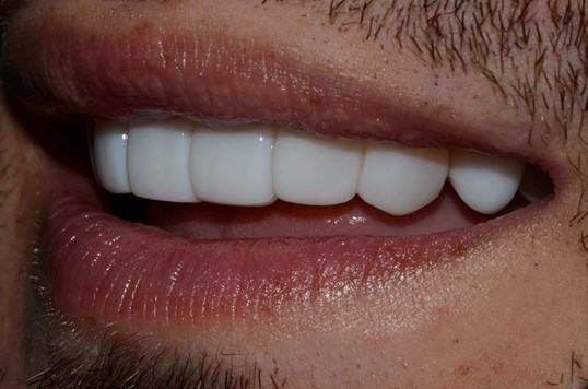Smile Makeover West Richland After