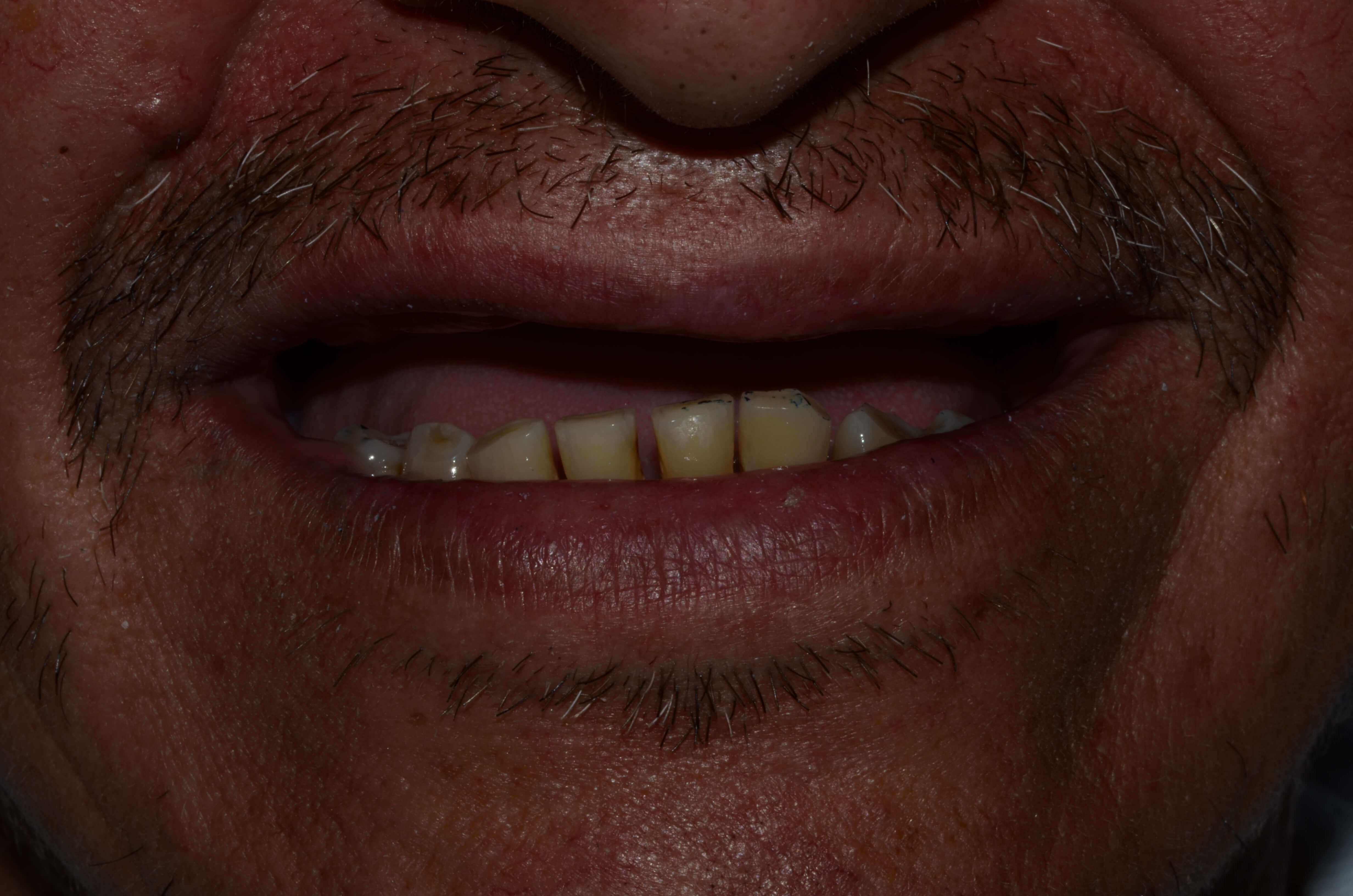 Dentures West Richland Crown D Before