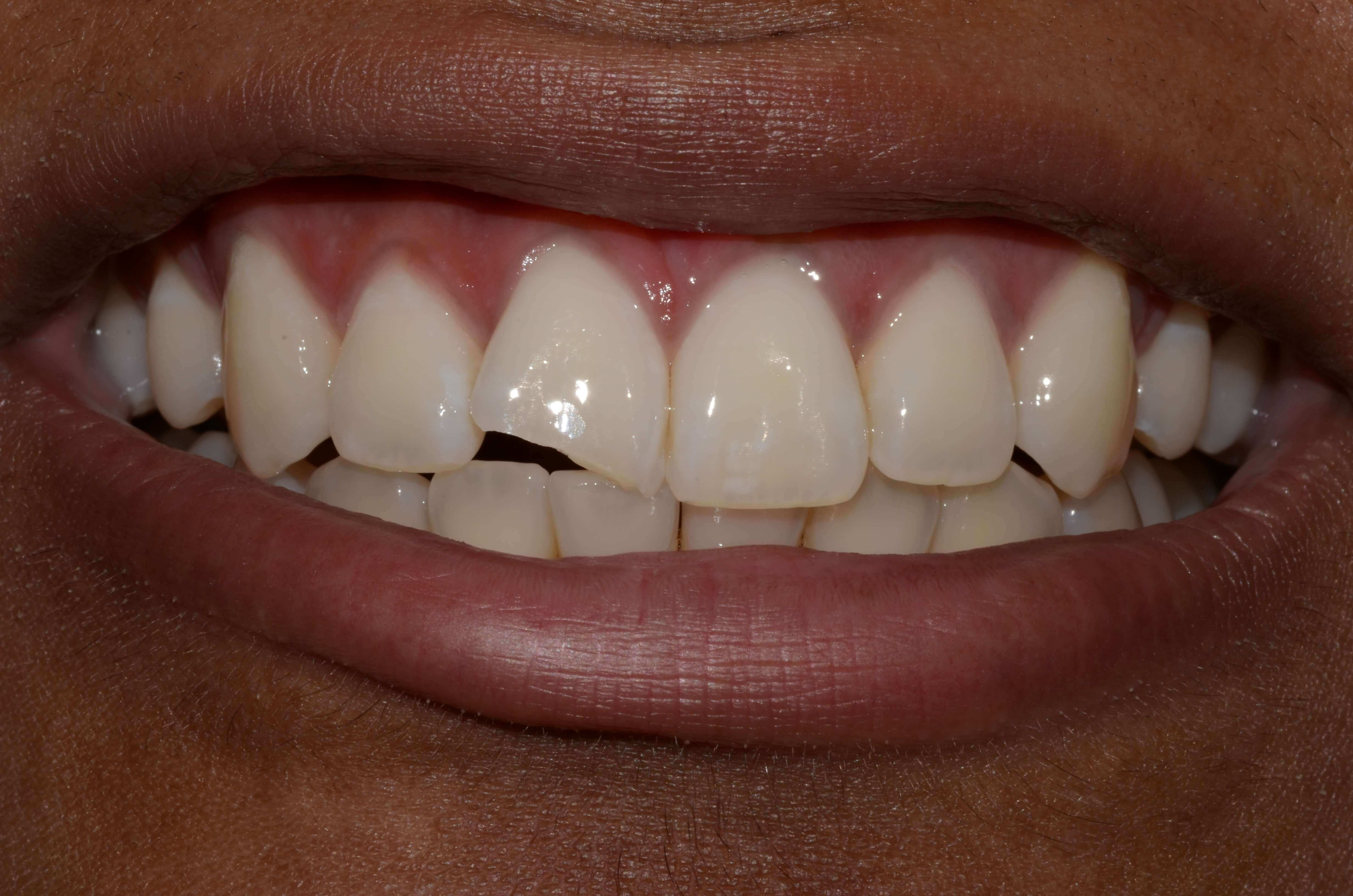Emergency Dental Treatment Before