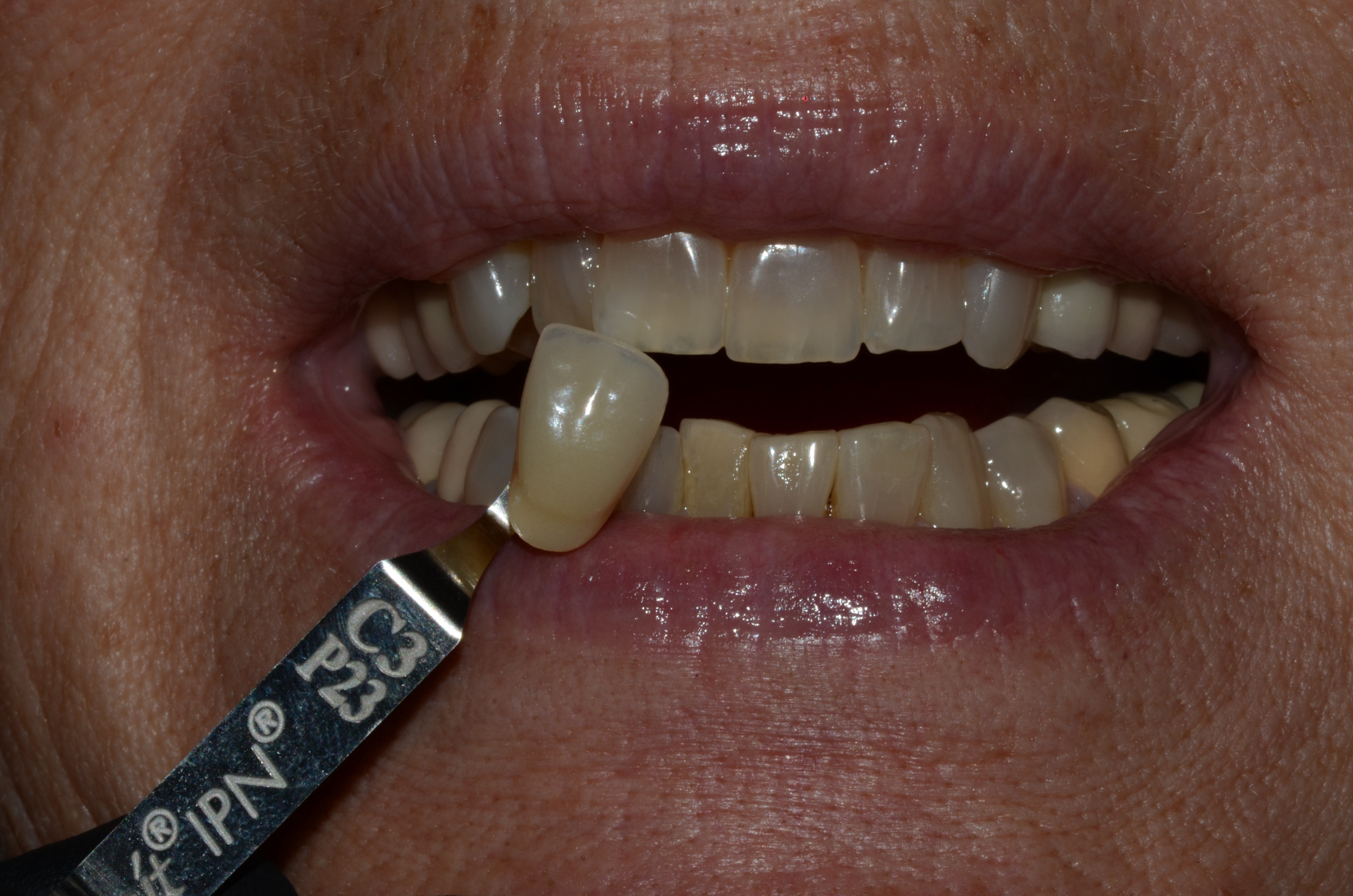Richland Whitening In-Office Before