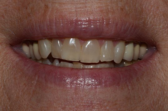 Kor Whitening Before and After Before