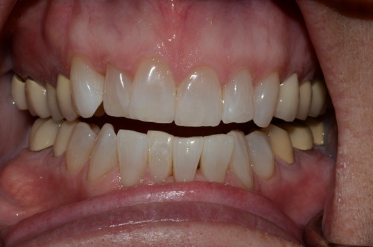 Kor Whitening Before and After After