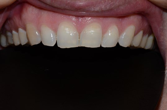 Composite Veneers Dentist Before