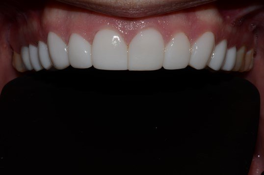 Composite Veneers Dentist After