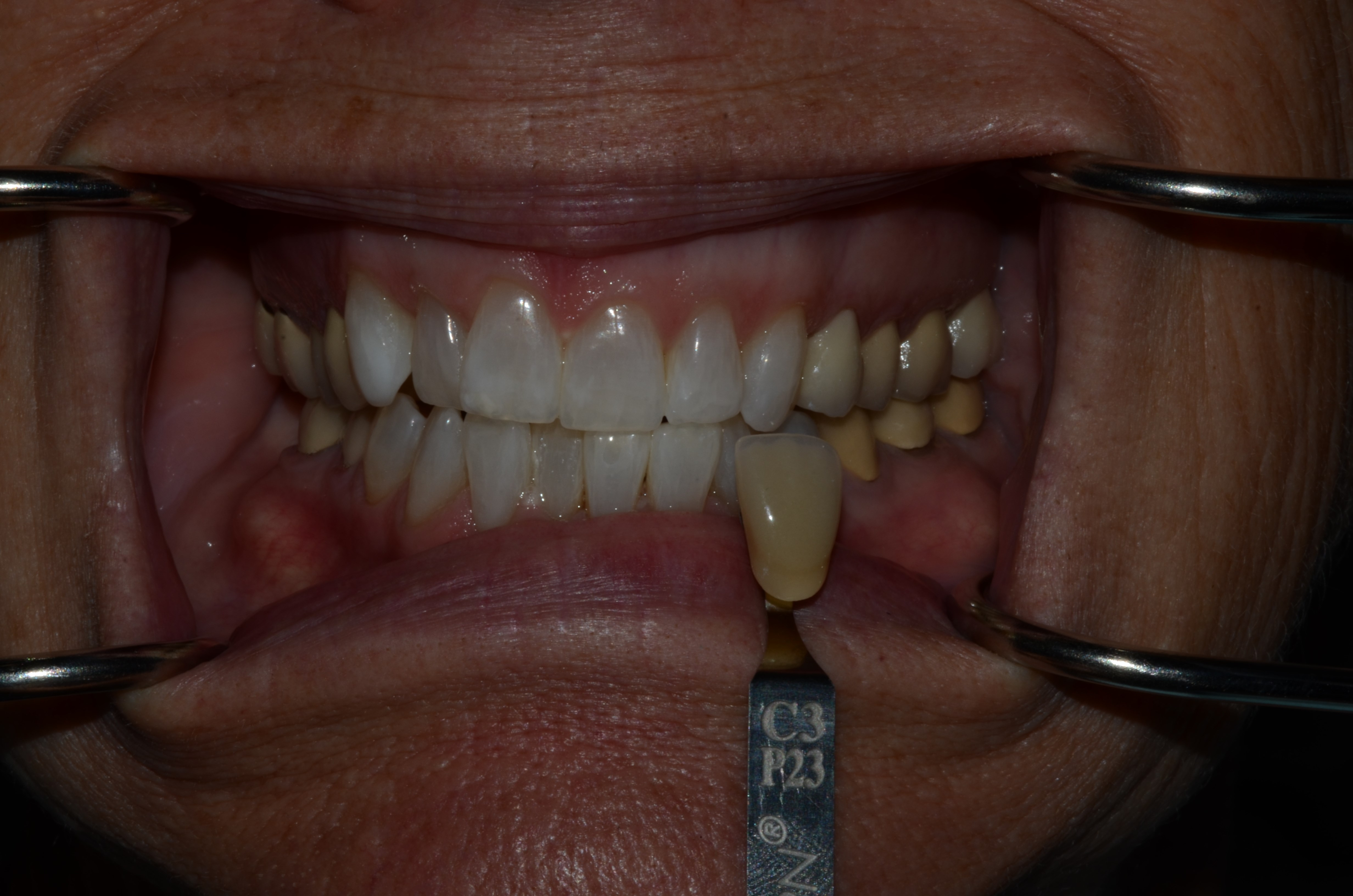 Richland Whitening In-Office After