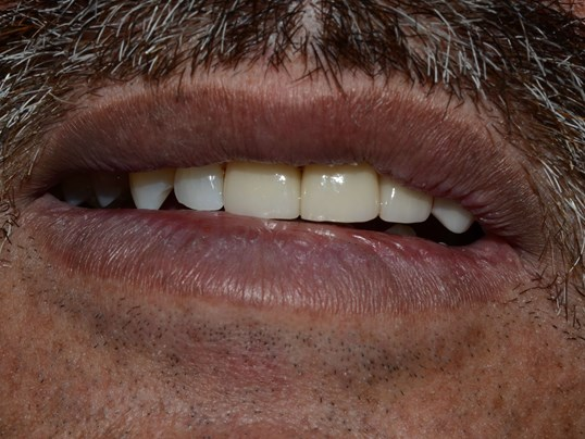 Tricities Veneers Dentist After