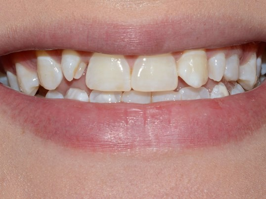 Dr. Cantu Cosmetic Dentist Wa Before