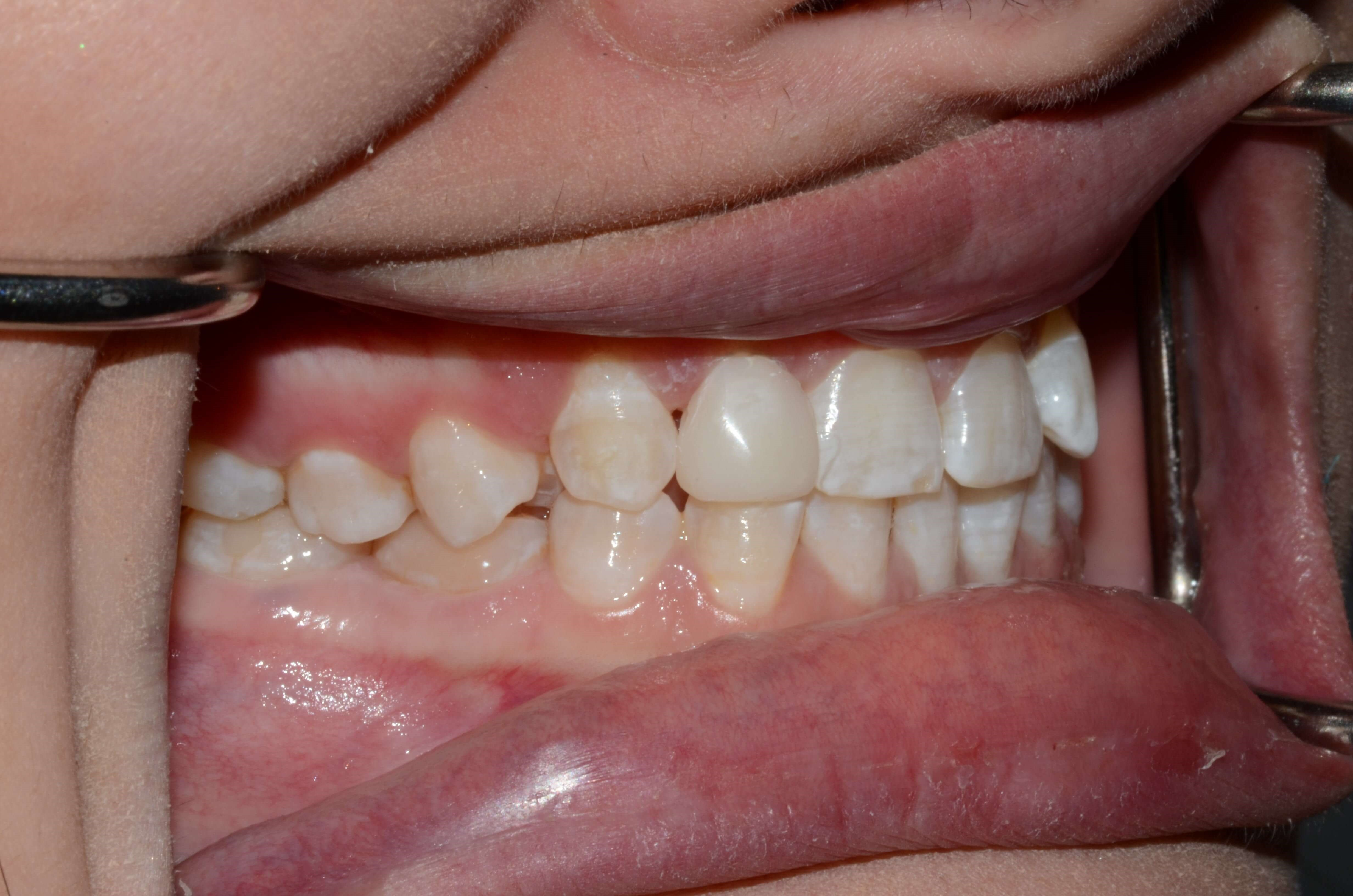 Dr. Cantu Cosmetic Dentist Wa After