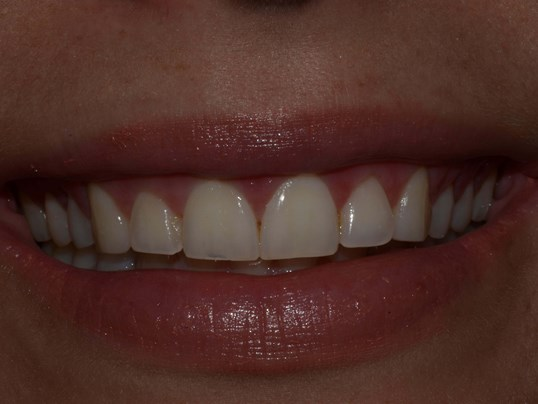 Gummy smile Crown Dental Pasco Before