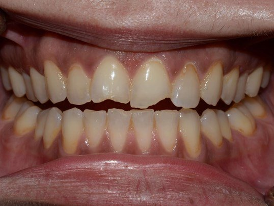 Tricities wa Cosmetic Dentist Before