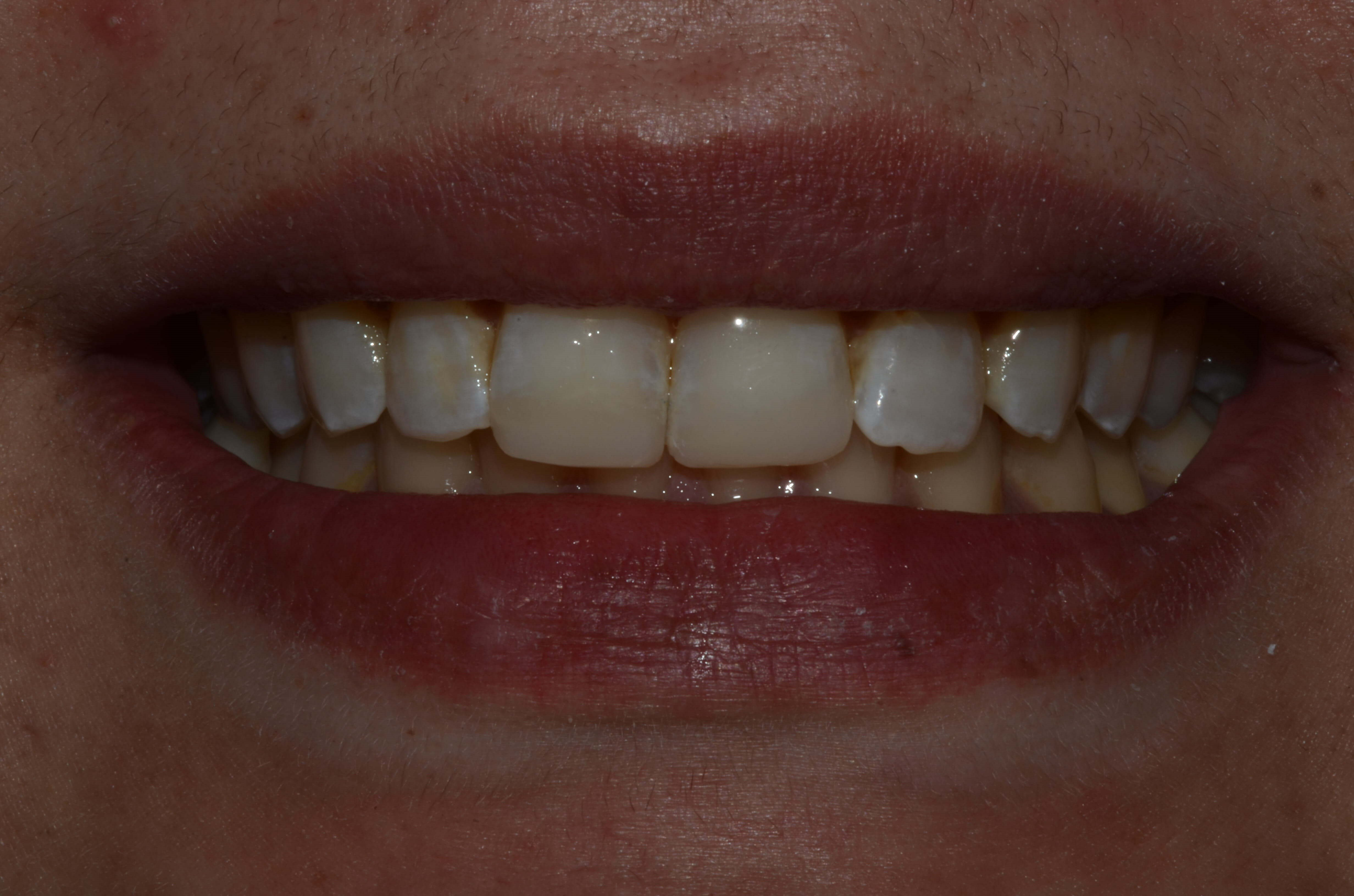 Tricities wa Cosmetic Dentist After