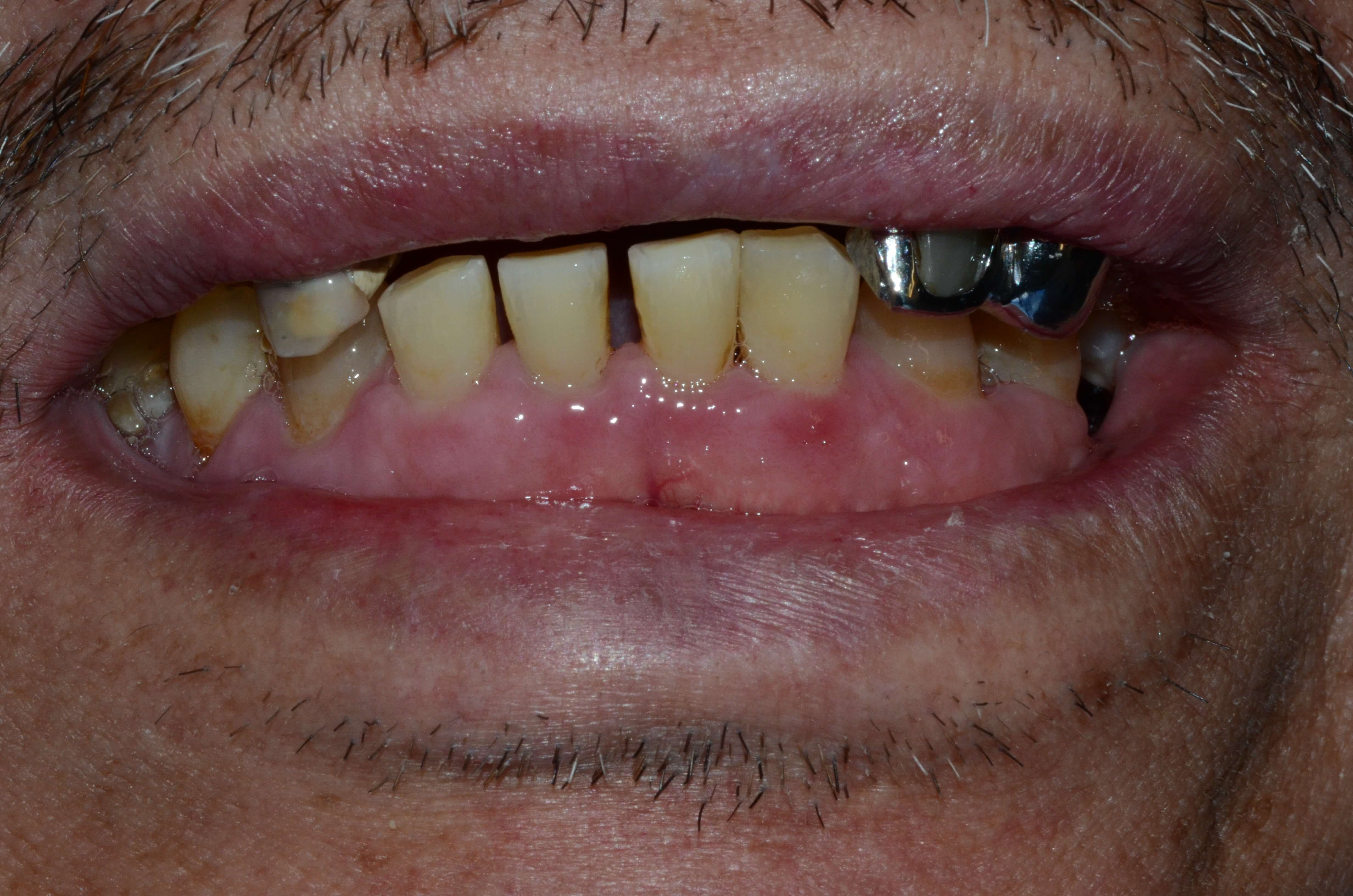Tricities Dentures Dr. Cantu Before