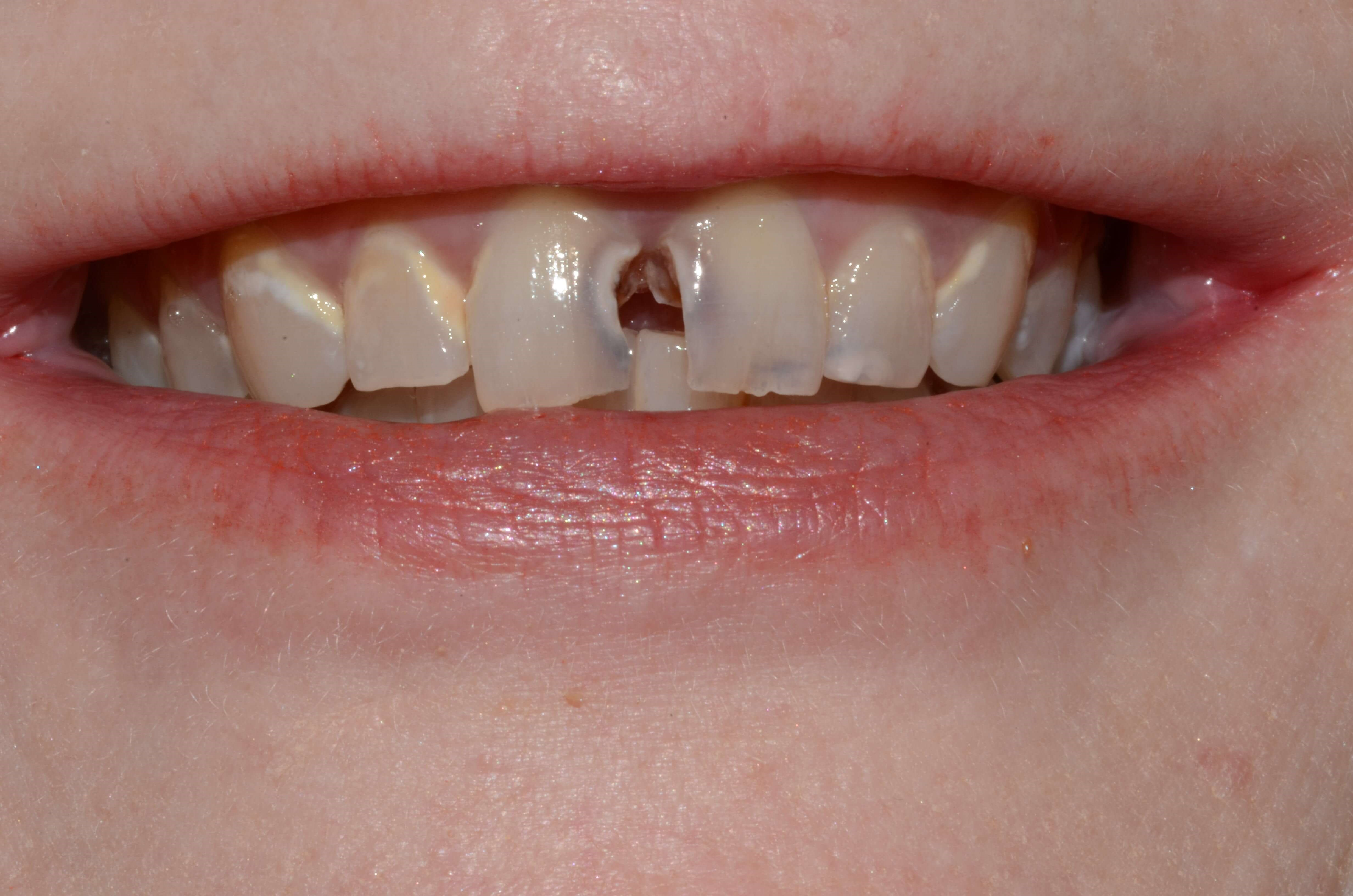 Tricities Cosmetic Dentist Wa Before
