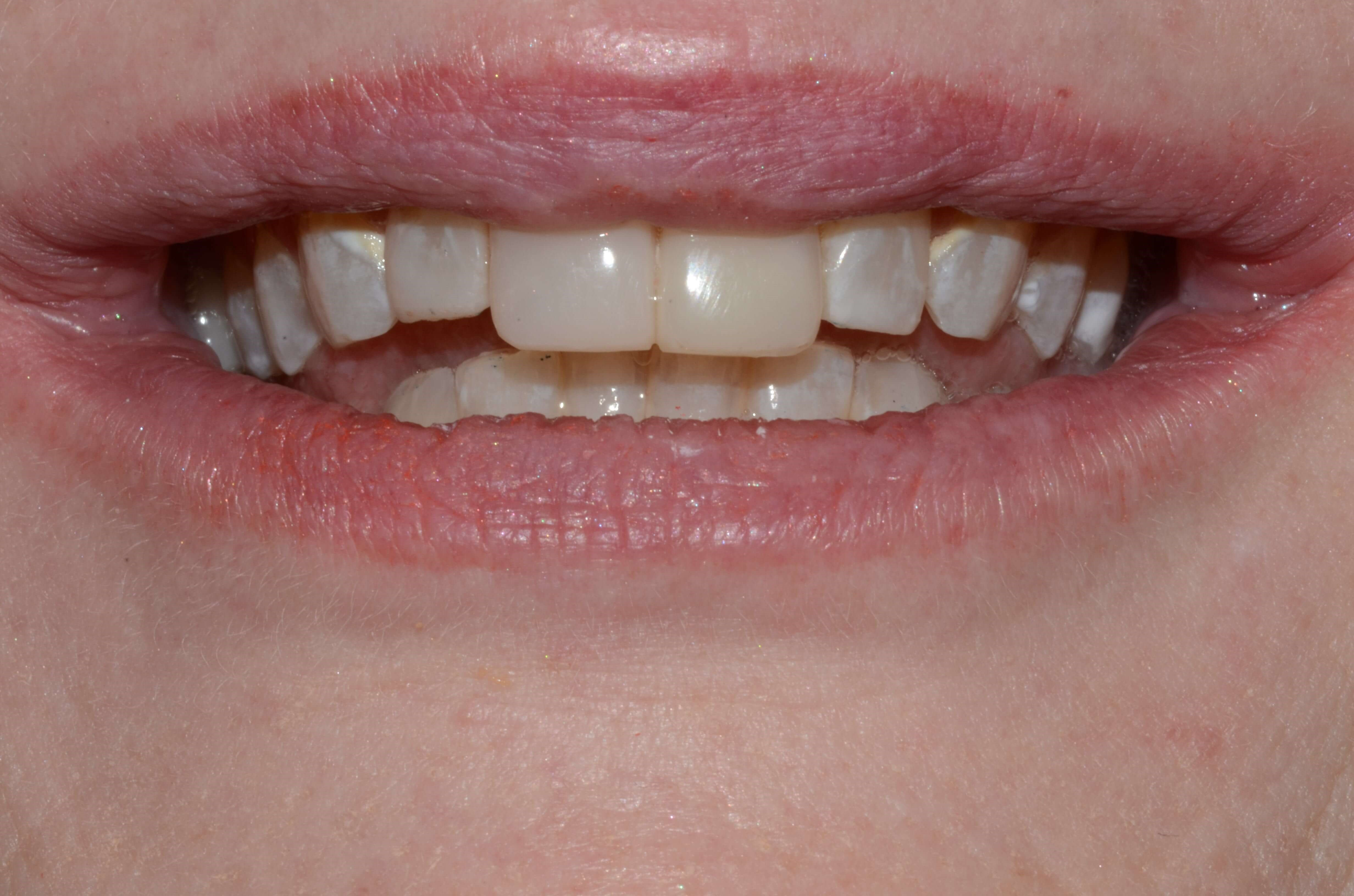Tricities Cosmetic Dentist Wa After
