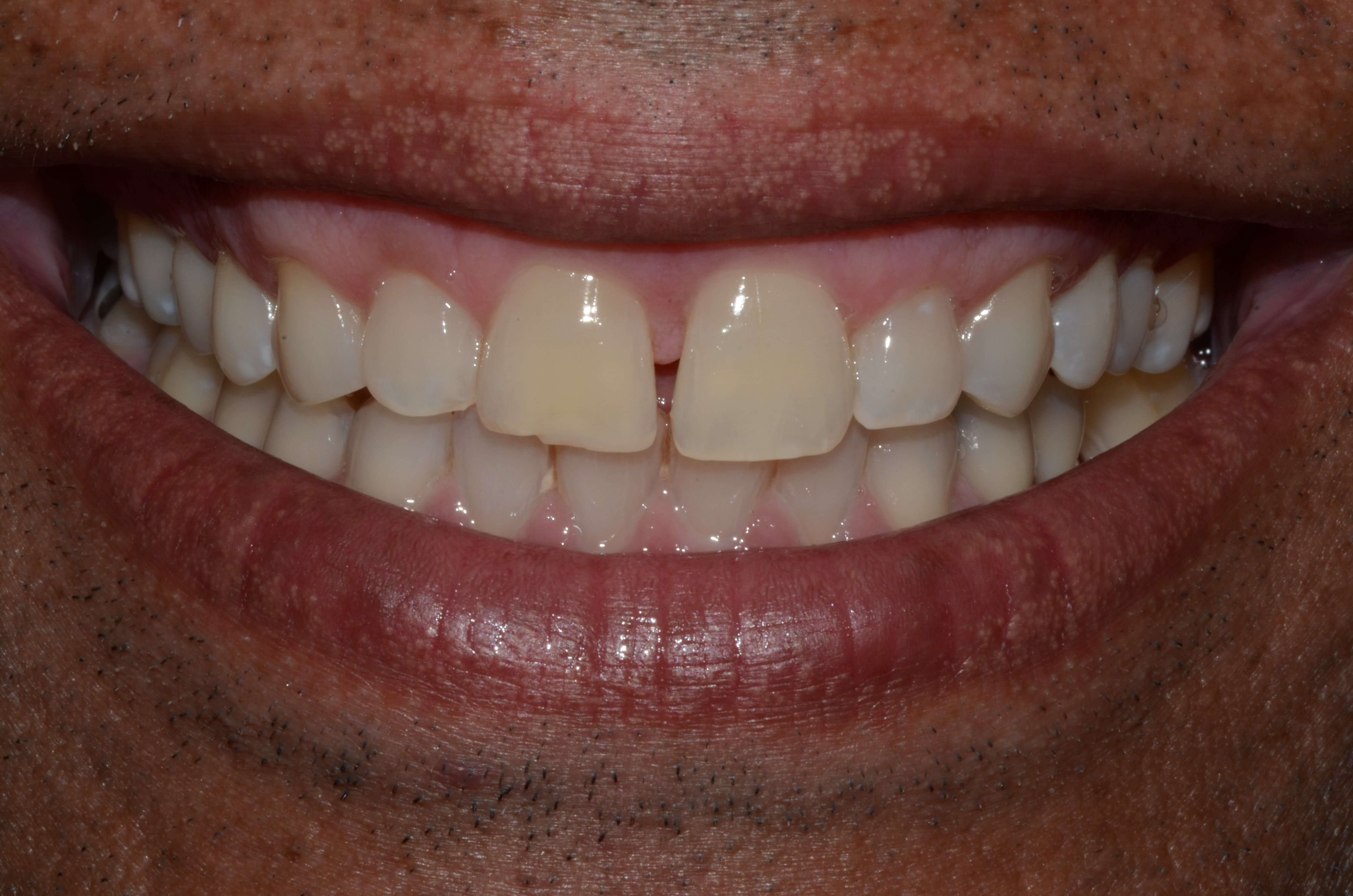 Professional Whitening Pasco Before