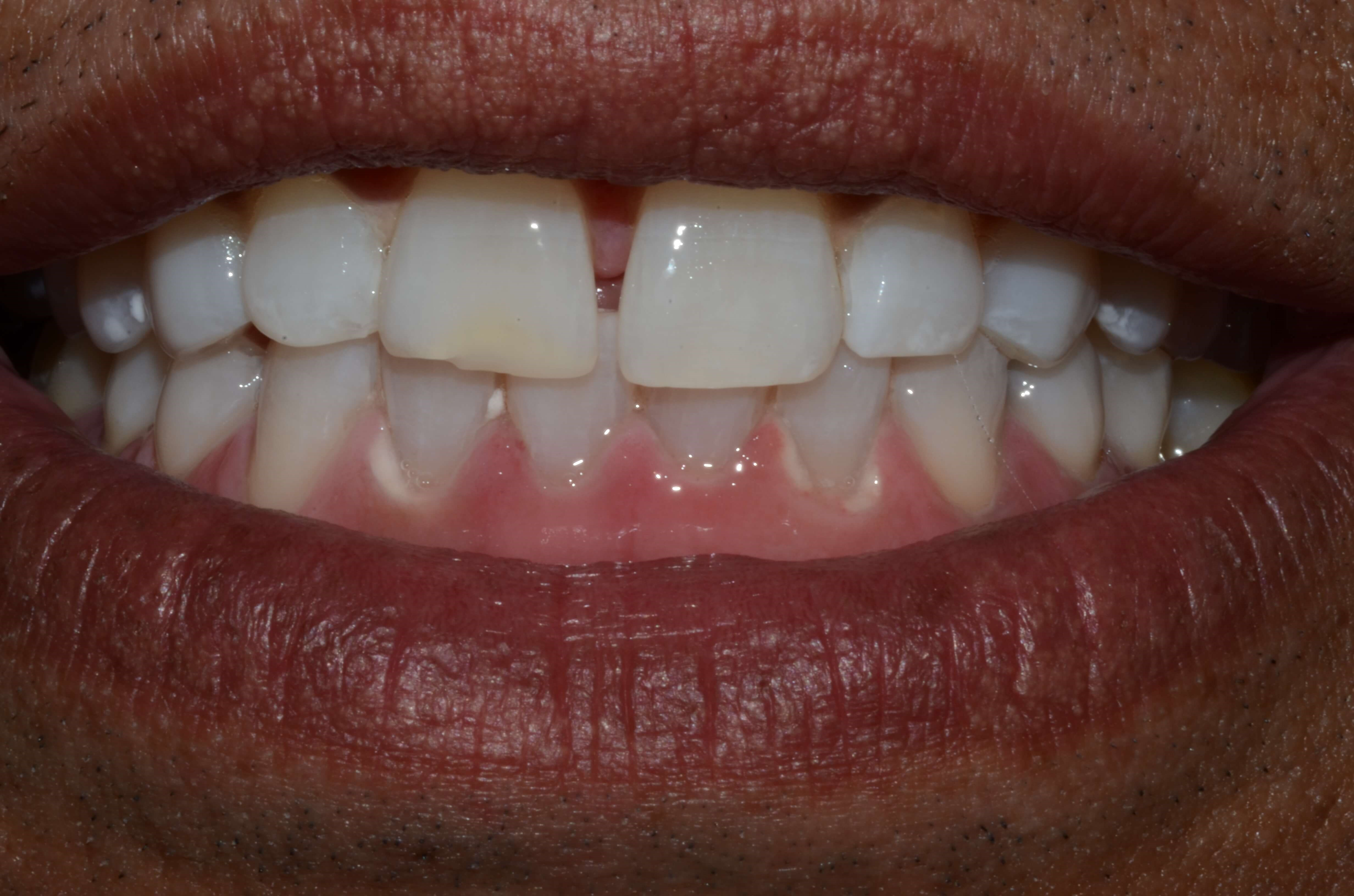 Professional Whitening Pasco After