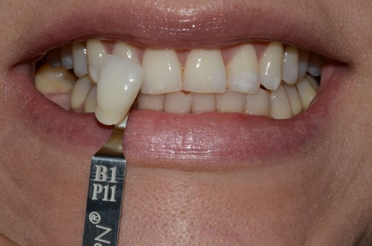 Whitening Richland, Pasco Before