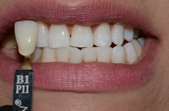 Whitening Richland, Pasco After
