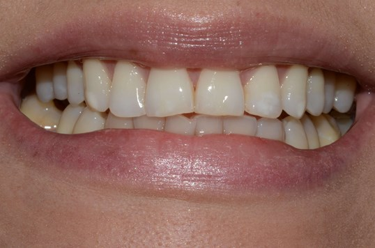 Whitening West Richalnd Before