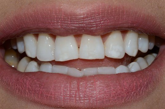 Whitening West Richalnd After