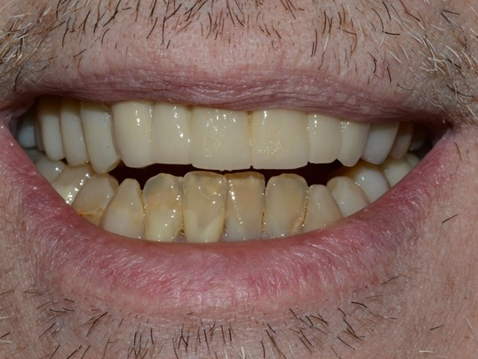 Smile Makeover Tricities After