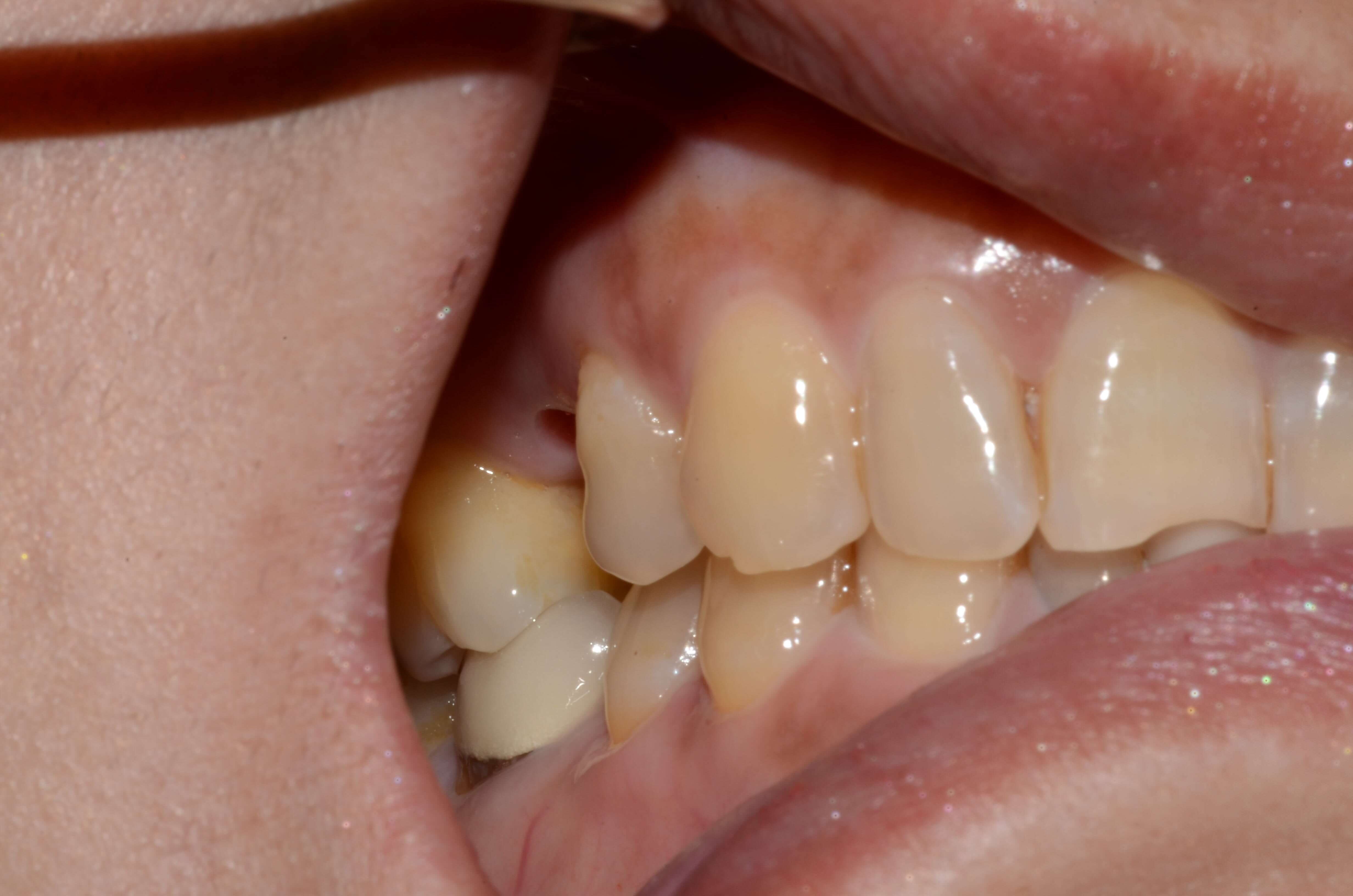 Tricities Dental Implant Crown Before