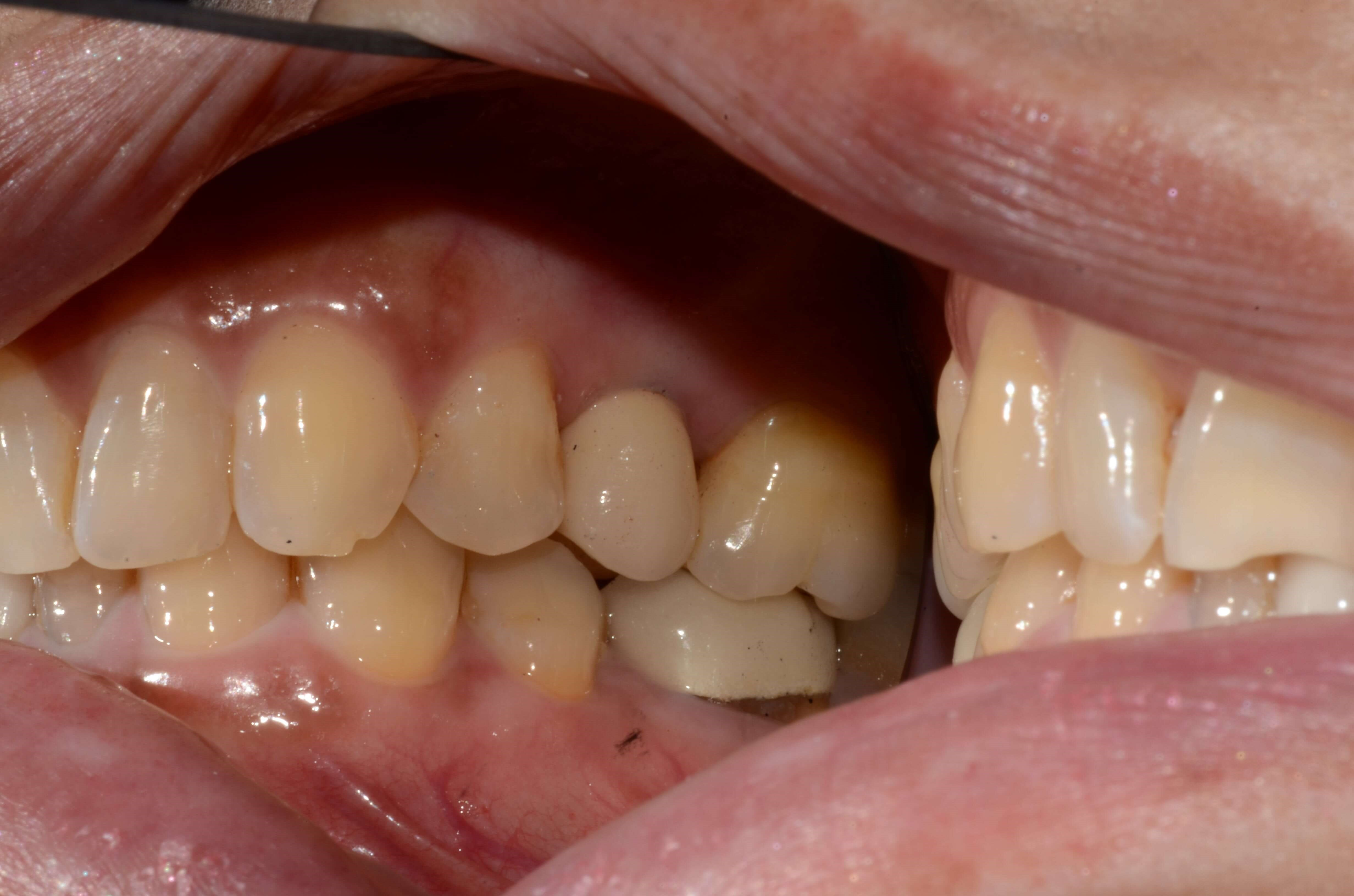 Tricities Dental Implant Crown After