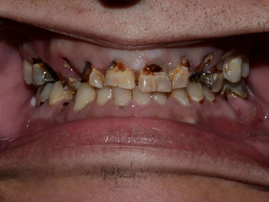 Tri-cities Implant Dentist Before