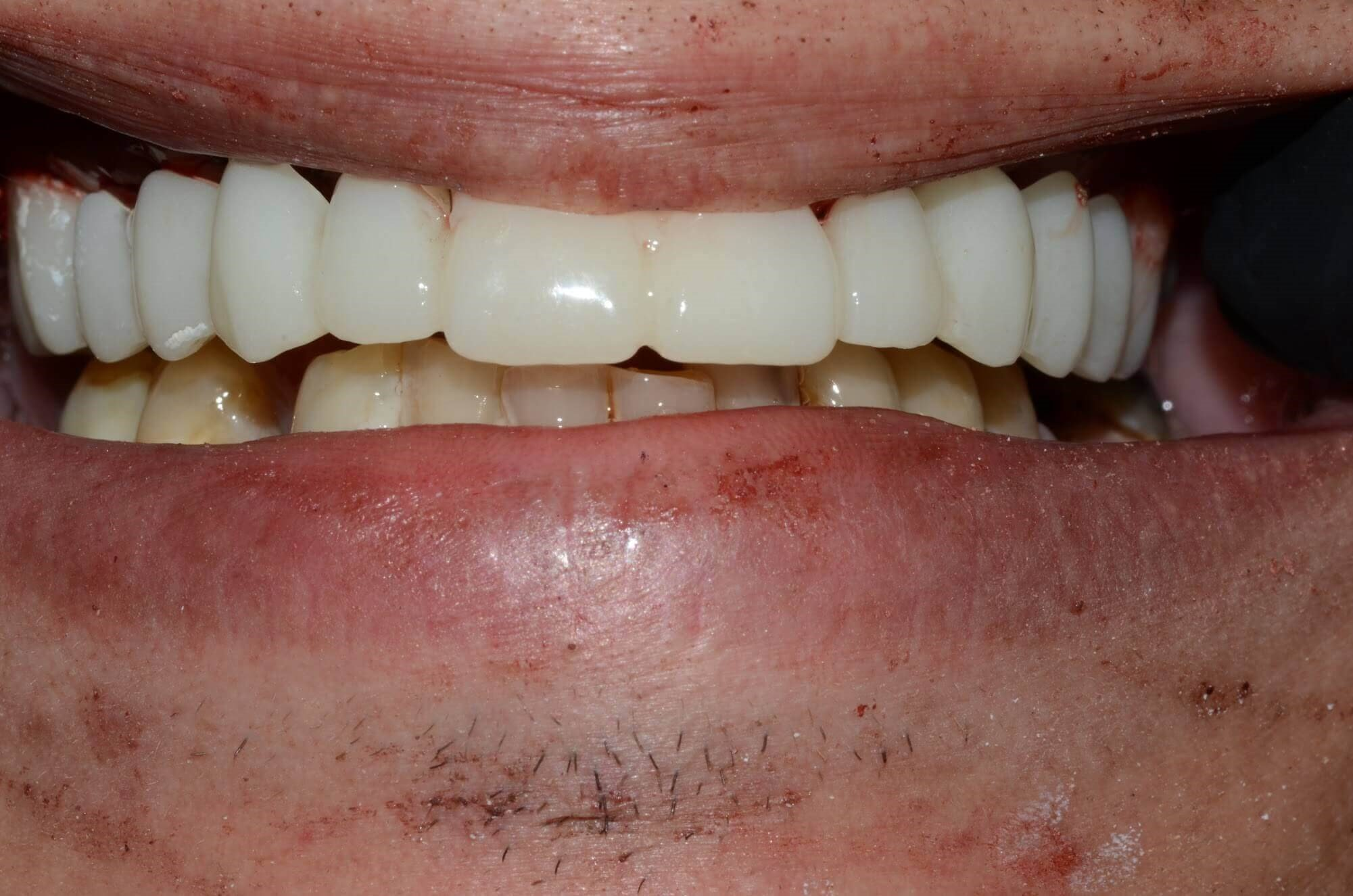 Tri-cities Implant Dentist After