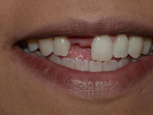 Tricities Cosmetic Dentist Before