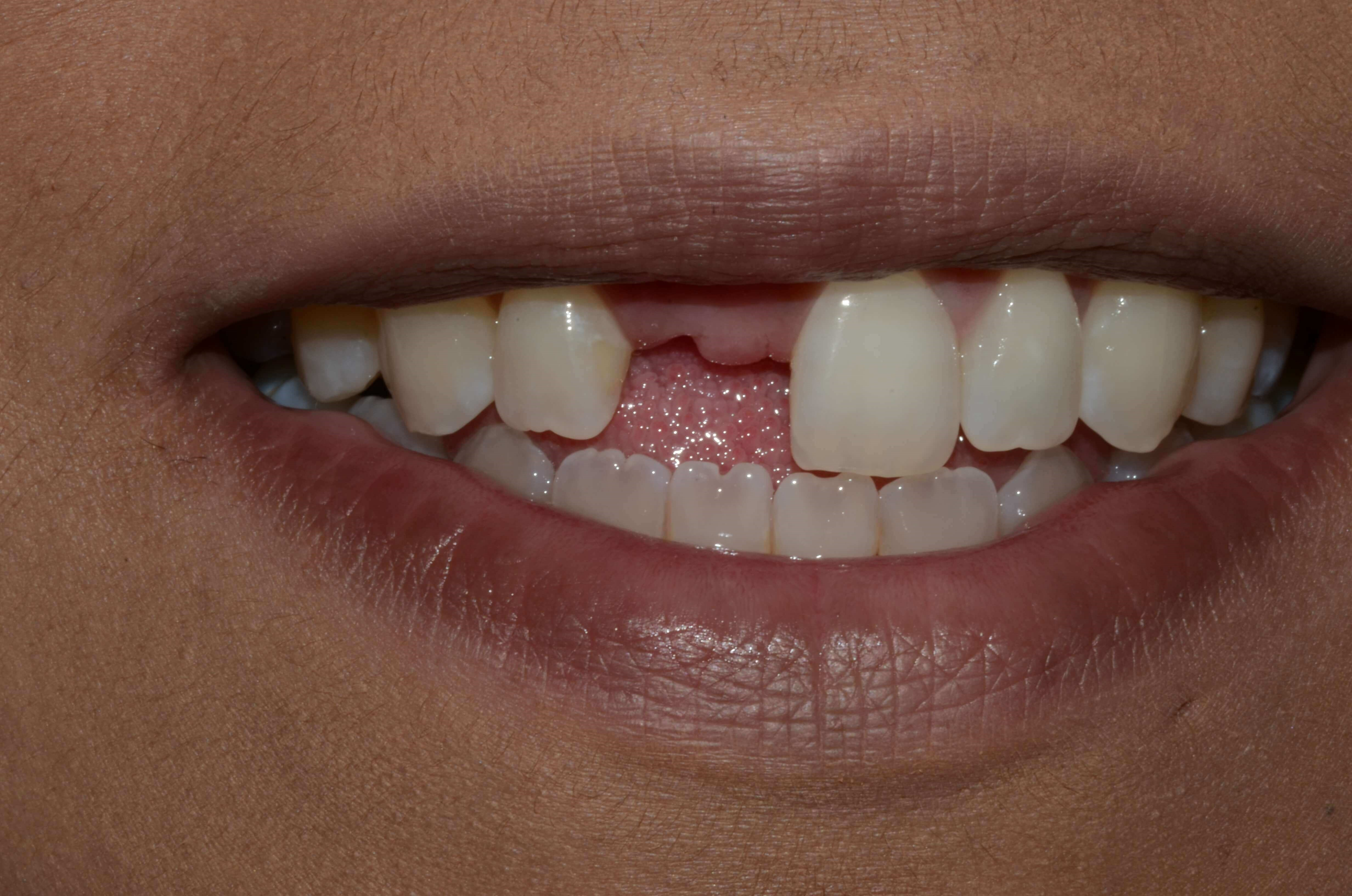 Tricities cosmetic dentist replaces missing front tooth with
