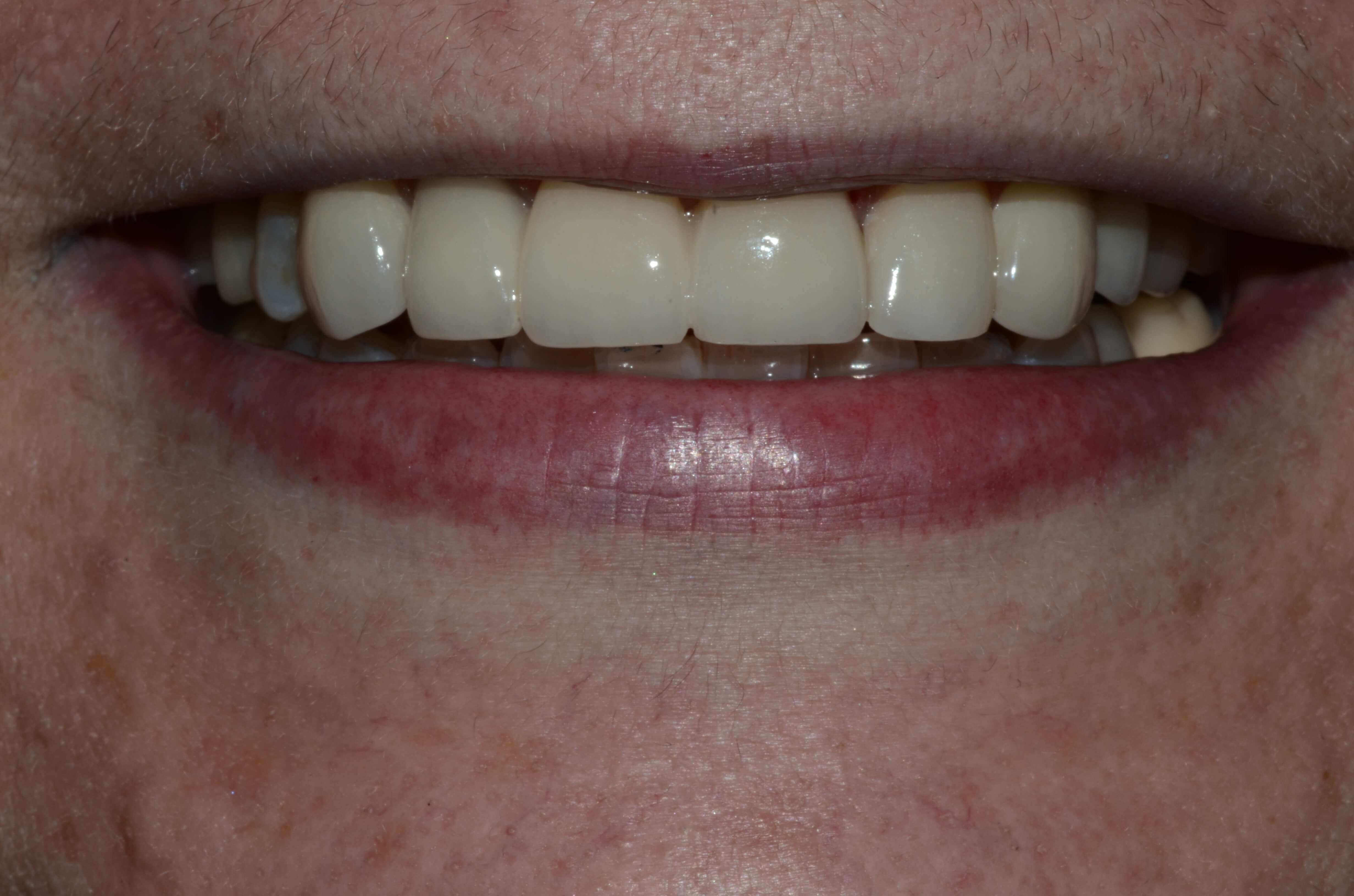 Tricities Cosmetic Dentist After