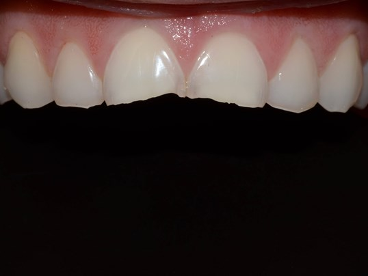 Tricities Cosmetic Veneers Before
