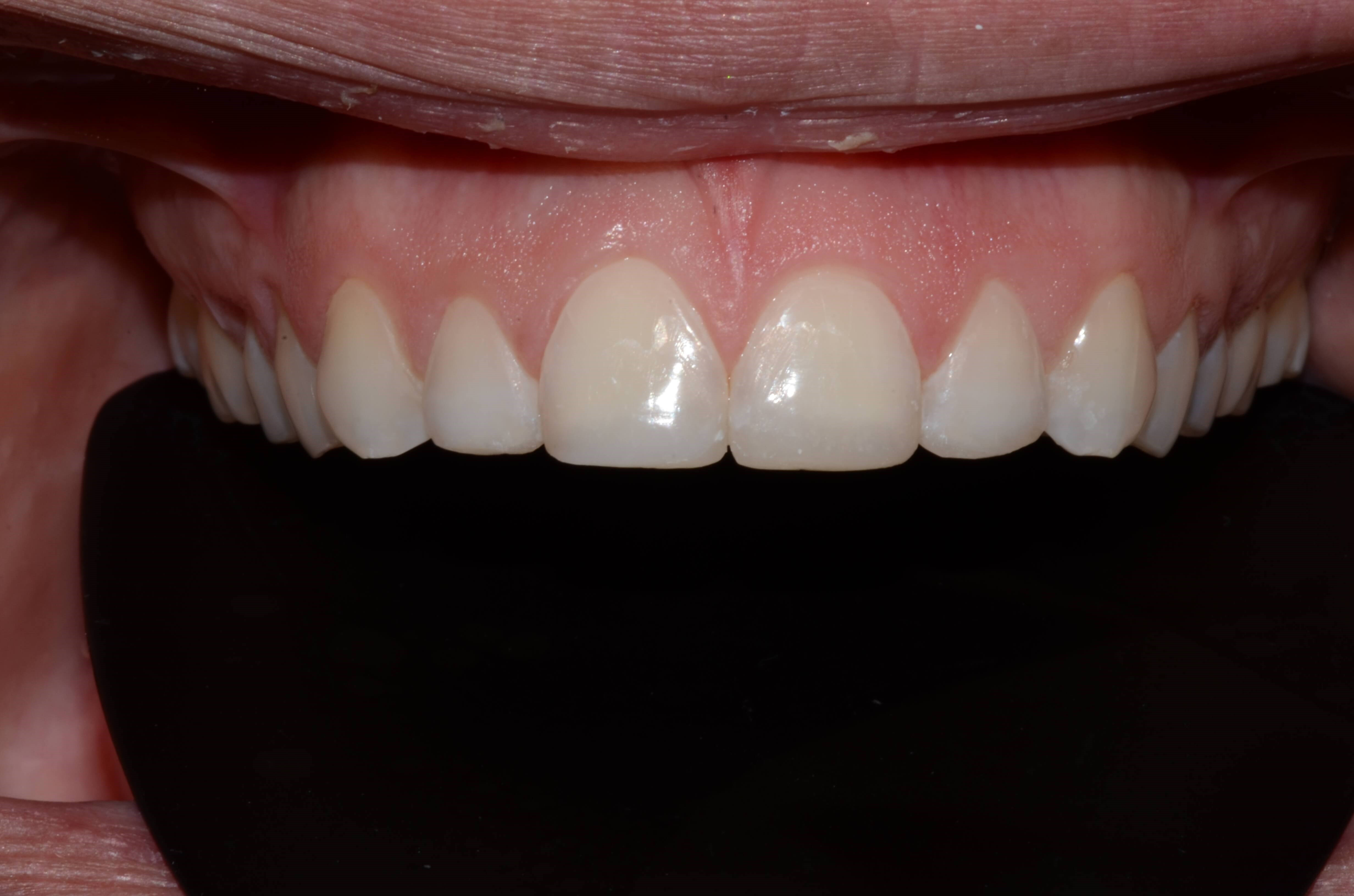 Tricities Cosmetic Veneers After