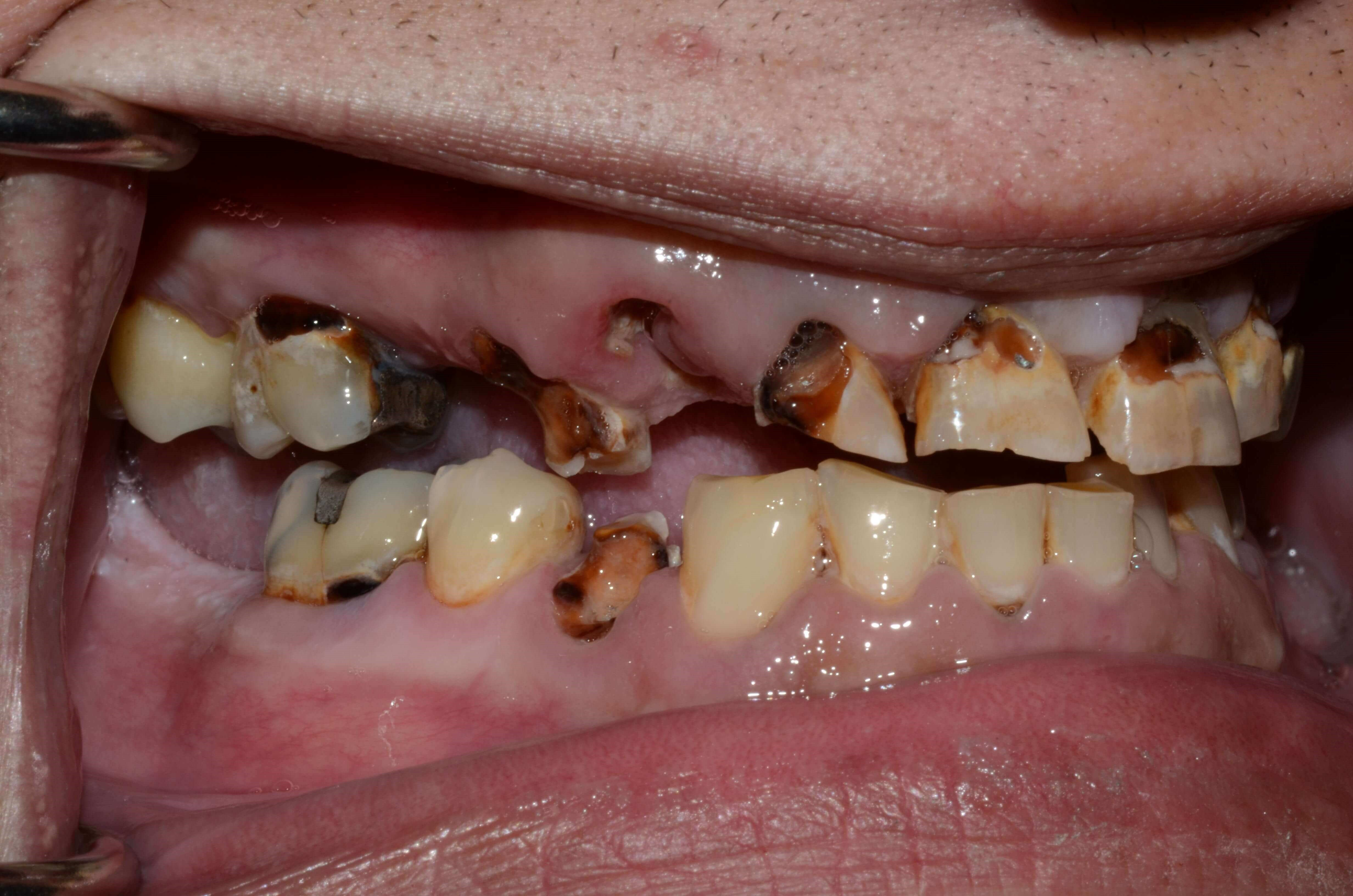 Dental Implants Richland Wa Before