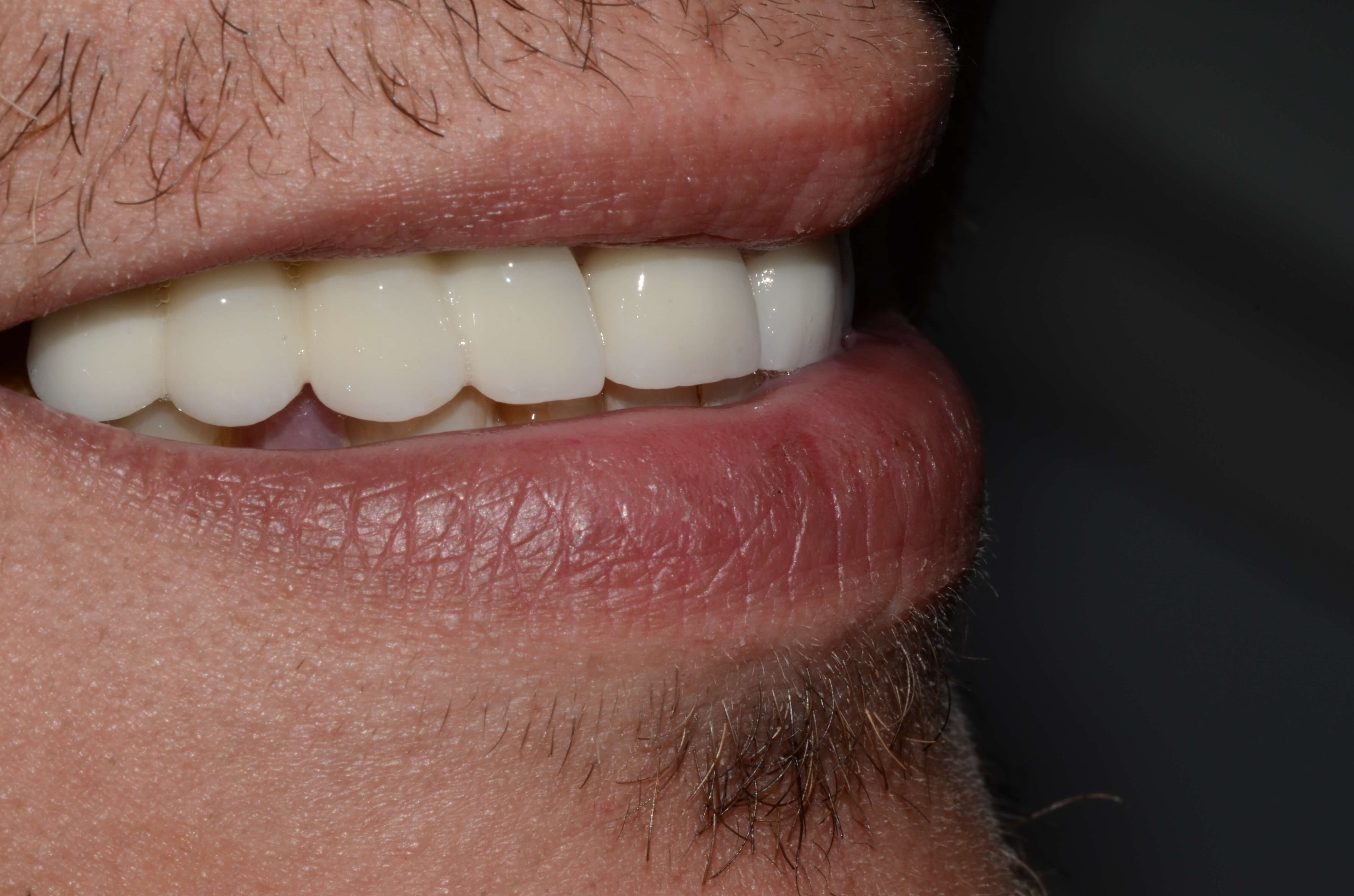 Dental Implants Richland Wa After