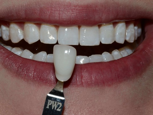Tri-cities, Wa Whitening After