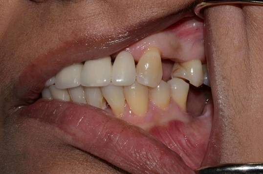 West Richland implant dentist Before