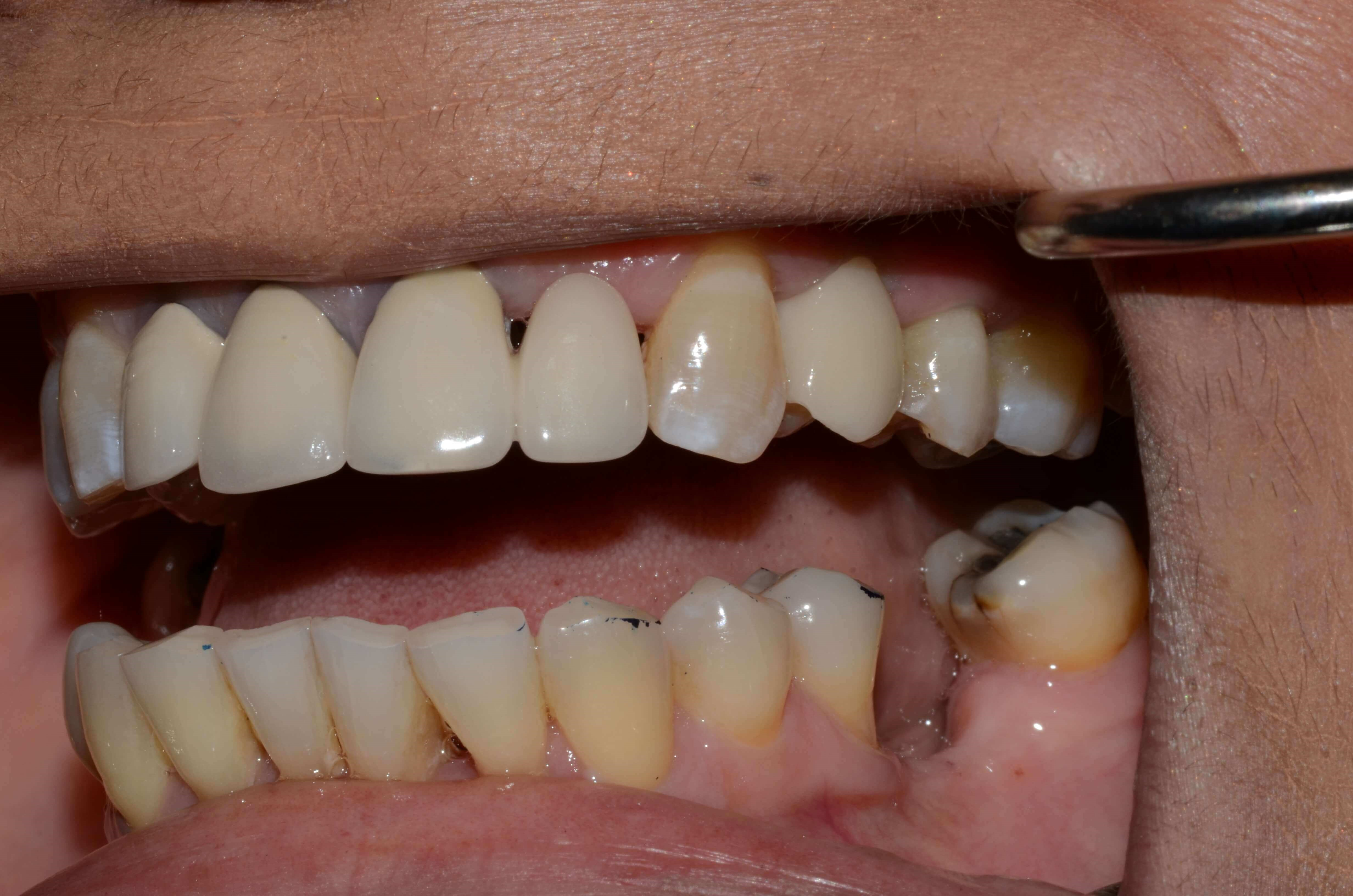 West Richland implant dentist After