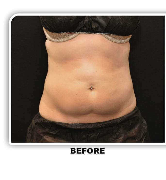 CoolSculpting Lower Adbomen Before