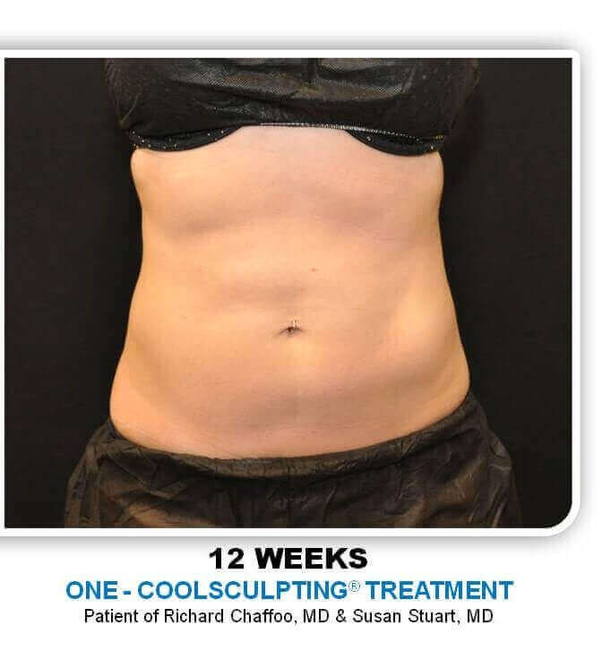 CoolSculpting Lower Adbomen After