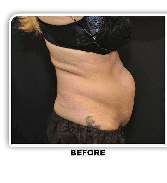 Coolsculpting Sideview Before